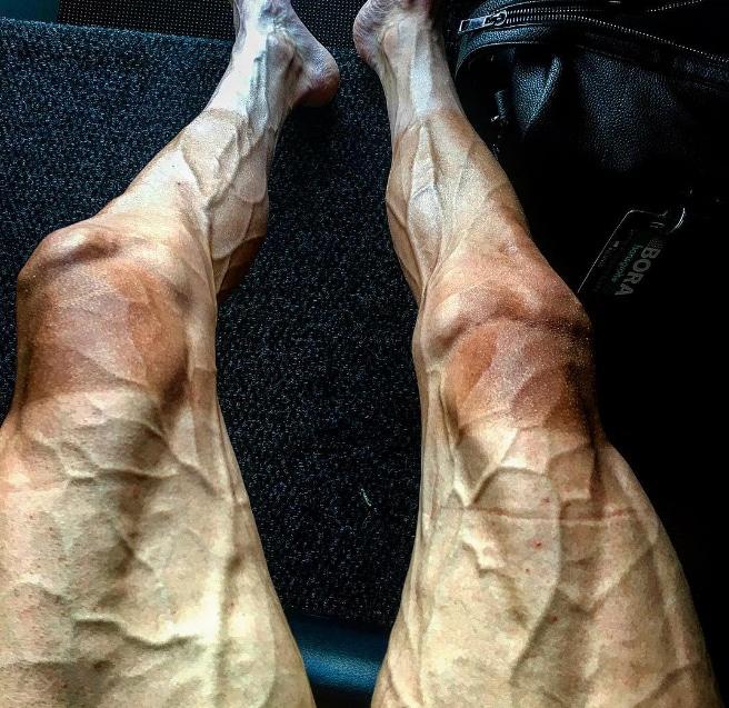 Las piernas de Pawel Poljánski tras acabar la 16ª etapa del Tour de Francia