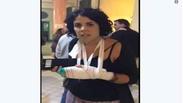 La mujer que acusó a la Policía de romperle todos los dedos