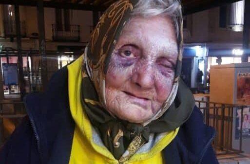Flor, la anciana sin hogar agredida en Madrid