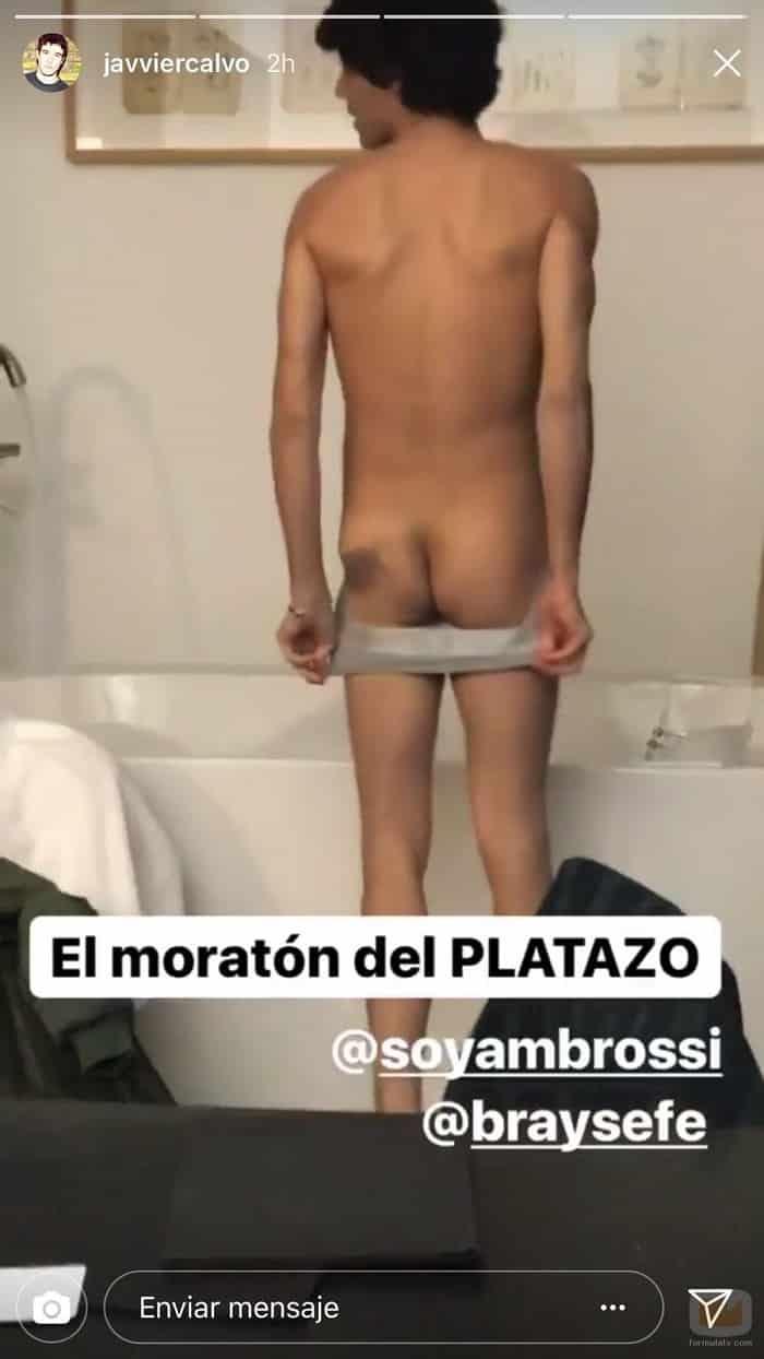 Las secuelas de la agresión a Javier Ambrossi