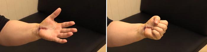 Máxima extensión y flexión (puño, imagen dcha.) de los dedos de la mano de Camelia