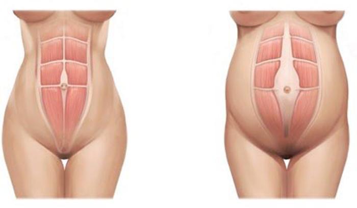 Diástasis de rectos abdominales