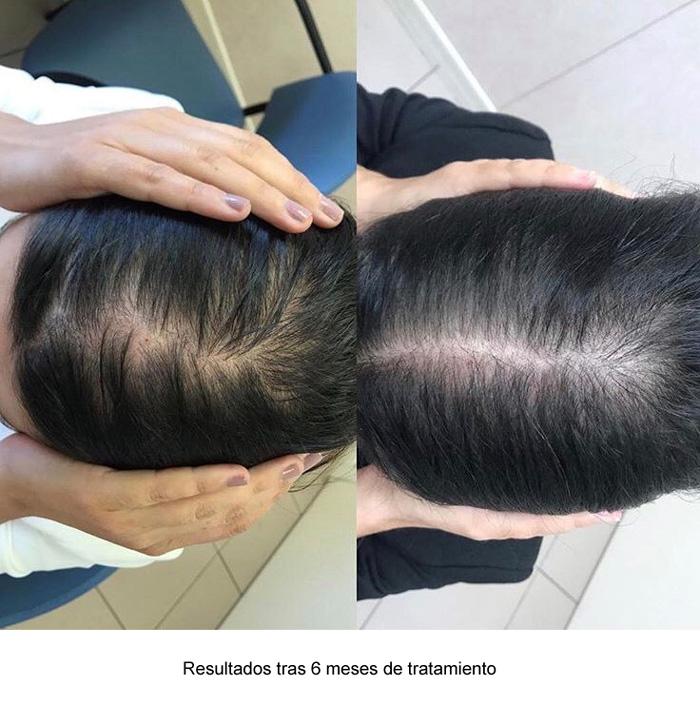 Consulta de alopecia femenina