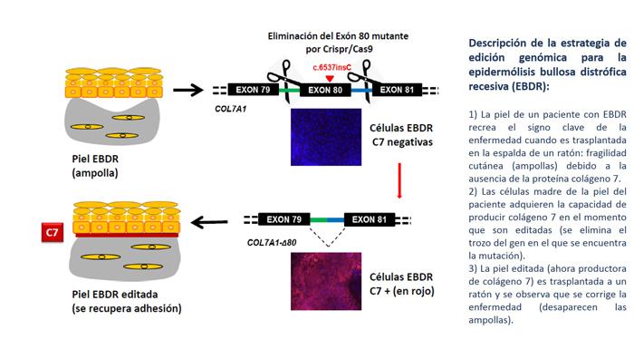 Descripción de la estrategia de edición genómica para la epidermólisis bullosa distrófica recesiva