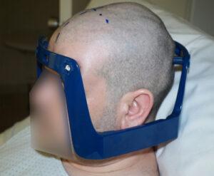 Paciente con el marco estereotáctico Vantage