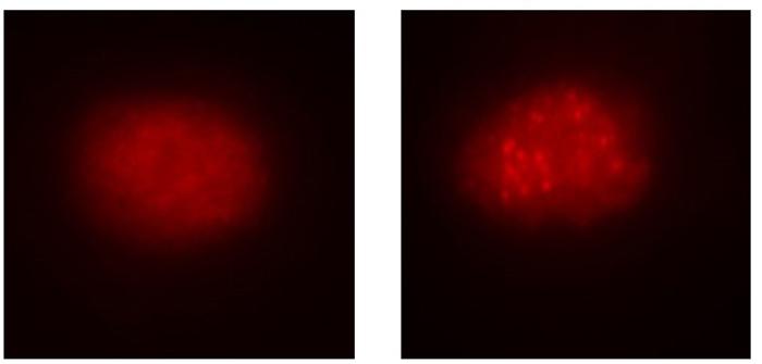 A la izquierda, célula de sangre de paciente afectado; a la derecha, corregida con el CRISPRCas9