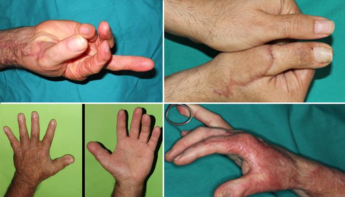 Imágenes de manos con el pulgar transferido desde el pie