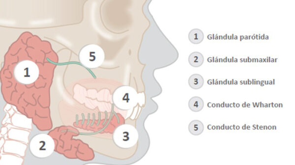 La sialoadenitis obstructiva crónica es la inflamación recurrente de las glándulas salivales