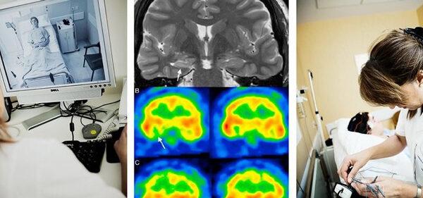 Unidad de Epilepsia del Hospital Ruber Internacional