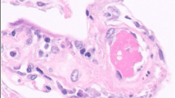 Trombo detectado en una arteriola pulmonar